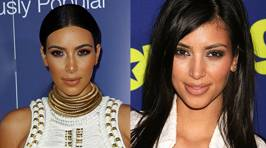 How Much Work Have The Kardashians Had Done?