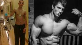 Amazing Body Transformation! From Cancer Patient to Body Builder