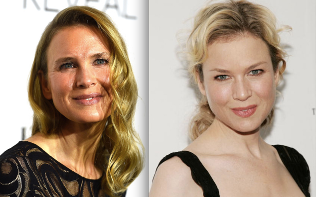 Renee Zellweger's Face Looks Different