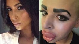 Guy Spends $150K On Plastic Surgery To Look Like Kim K and Fails...