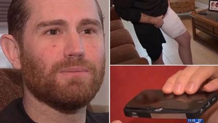 Man Left With Third-Degree Burns After Phone Explodes in His Pocket