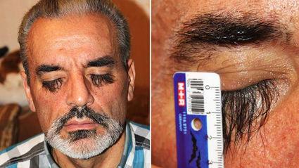 Secret Food Gives Man Incredibly Long Eyelashes