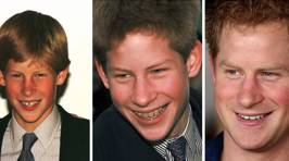 These Celebrities ALL Had Braces At Some Point!