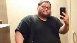 """Man Who Lost 90Kgs, Gets Hilarious """"Sorry For Your Loss"""" Card From Friends"""