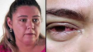 This Woman Cries Crystal Tears Due To Mysterious Condition