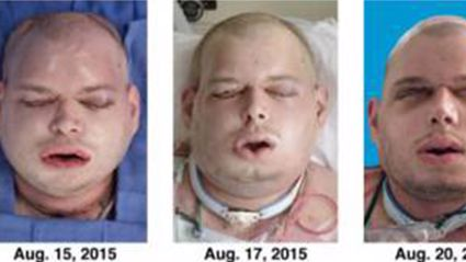 Former US Fireman Has Had the 'Most Extensive' Face Transplant Ever