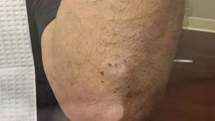 Watch What Is Squeezed Out of A Bulge in This Man's Elbow