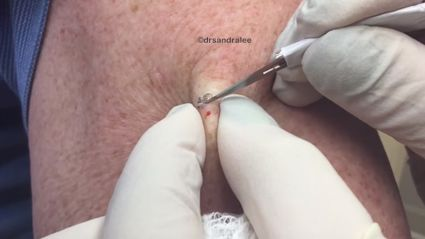 NOPE NOPE NOPE: Dr Pimple Popper Made a 'Greatest Hits' Compilation