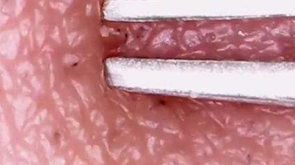 The blackhead popping video that 21 million people have watched