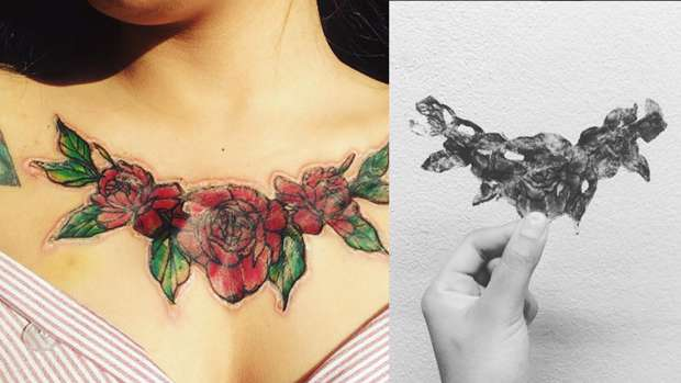 This Girls Chest Tattoo Literally Fell Off And Left A Horrific Scar