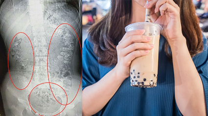 Girl hospitalised after drinking too much bubble tea!
